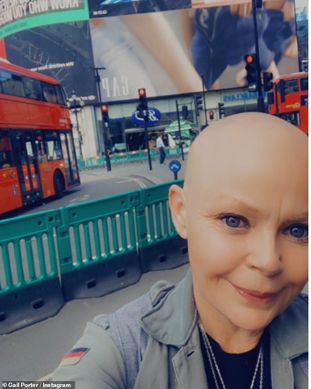 Struggles:'I'm bald and I don't feel confident about dating. I'd love to meet someone, but I don't feel pretty and it's fine,' she explained of her battle with alopecia