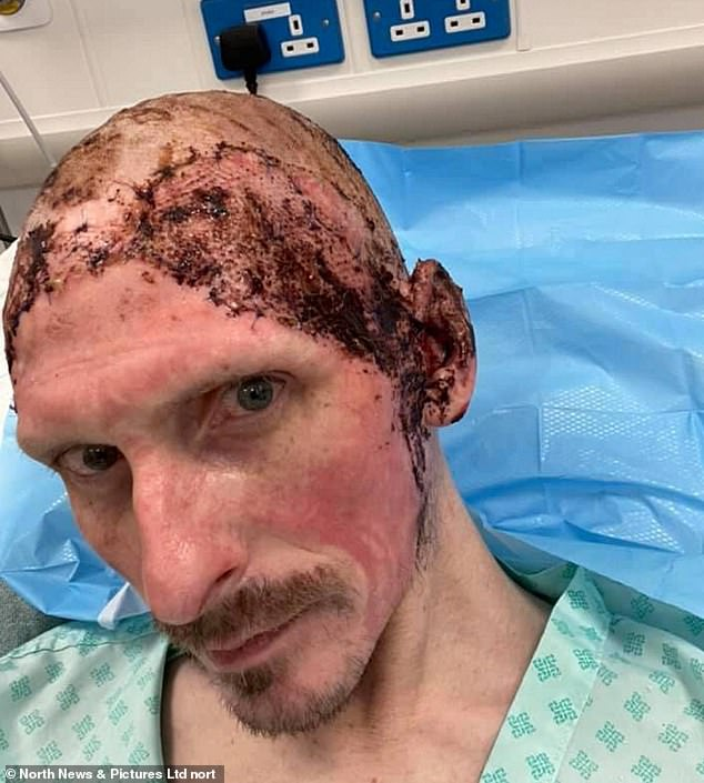 Brian Hutchinson, 42, from Newcastle, a taxi driver who was left with horrific burns after a hand sanitiser solution created a terrifying 'fireballl' in his car