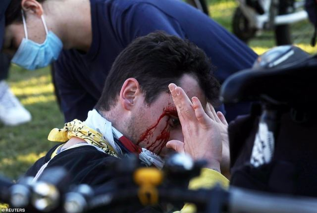 """A man is seen injured as supporters of Trump participate in a """"Stop the Steal"""" protest after the 2020 U.S. presidential election"""