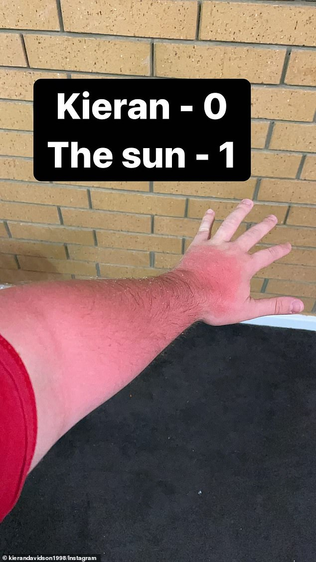 Ouch! On Tuesday, Big Brother's Kieran Davidson showed off his extreme sunburn after he 'forgot' to wear sunscreen