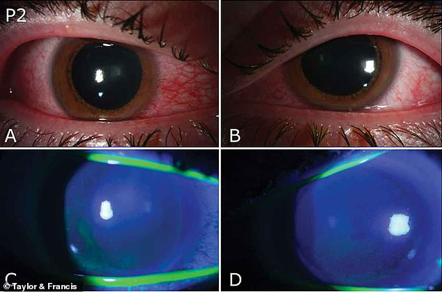 All the patients did not use proper eye equipment and developed photokeratitis, a conditions that causes severe inflammation the cornea (above and below)