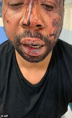 Michel suffered a torn tendon and a gash on his head that needed to be secured by two staples, among other wounds (pictured)
