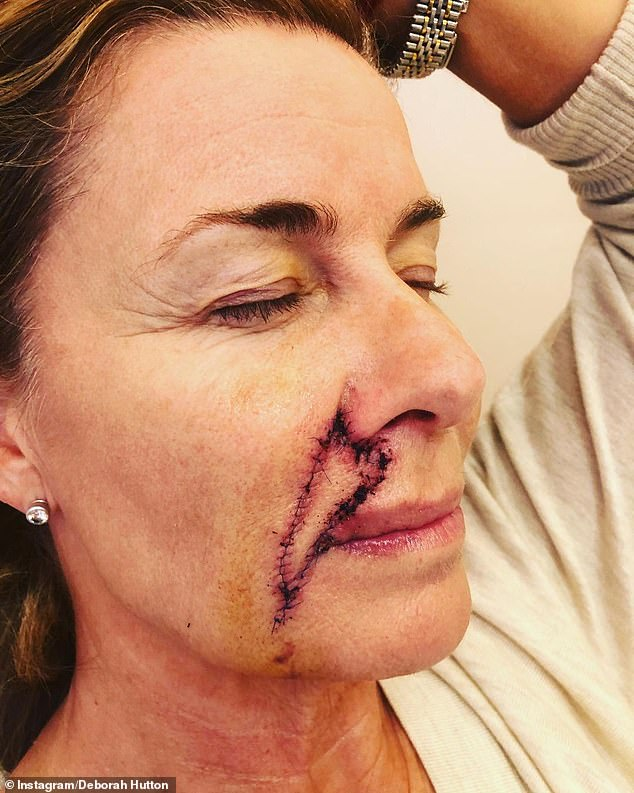 Brave:Deborah underwent surgery to remove skin cancer from her face back in May, and shared pictures of her scars to urge people to get checked at the time