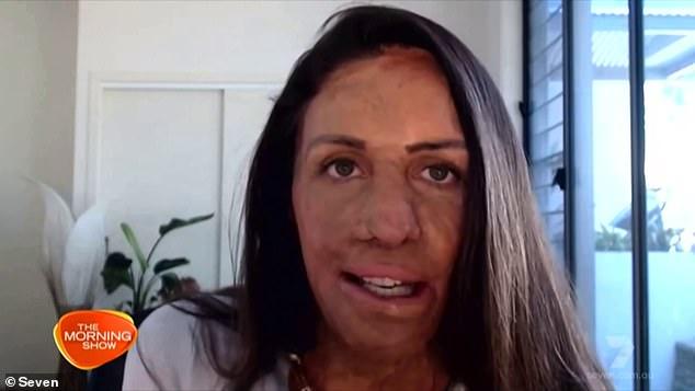 Inspirational burns survivor Turia Pitt discusses motherhood after welcoming her second son Rahiti