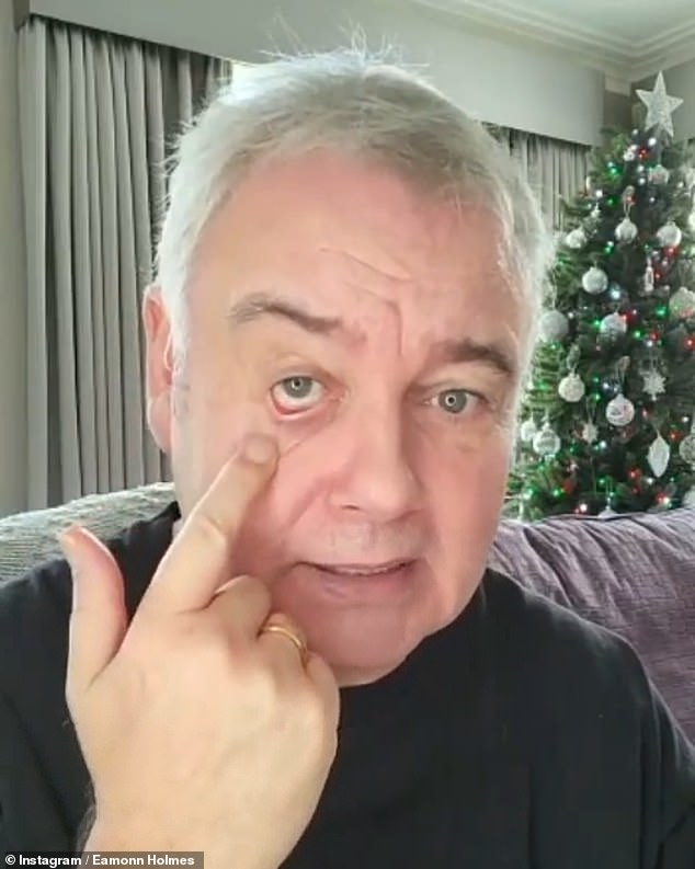 On the mend: The former Sky News presenter also told his followers that his sty was nearly healed