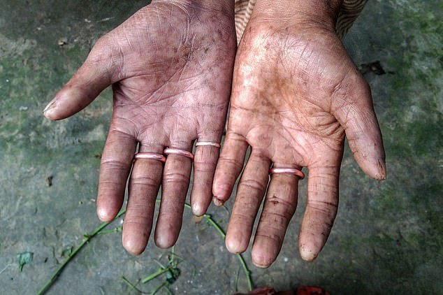 The family, who live in a village in the northern Rajshahi district, are thought to suffer from a rare condition known as Adermatoglyphia. The condition results in a lack of ridges on the fingers, hands, toes and feet and can be accompanied by symptoms including reduced sweat glands in the hands and feet, small white bumps on the face and blistering of the skin, according to the US National Institute of Health. Pictured: Amal Sarker's hands