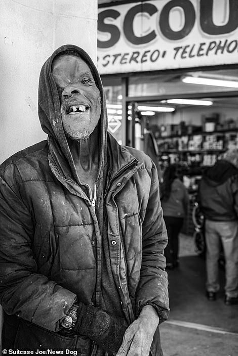 Jerry, who has a serious facial disfigurement after surviving a shooting at a bus stop. Despite his terrible injury, Jerry was often photographed smiling and laughing however he sadly passed away in December 2020
