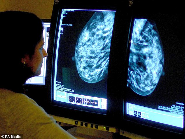 Cancer cases were principally colon, breast and prostate. Pictured, mammogram for breast cancer, which is the most common cancer in the world