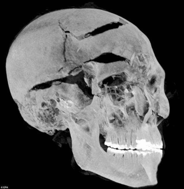Experts from Egypt CT-scanned the mummy of Seqenenre Tao, known as 'the Brave', and revealed new details about the injuries that led to his death. Several assailants attacked him and inflicted fatal blows to his head with bladed weapons.Pictured, a scan of the mummy's skull