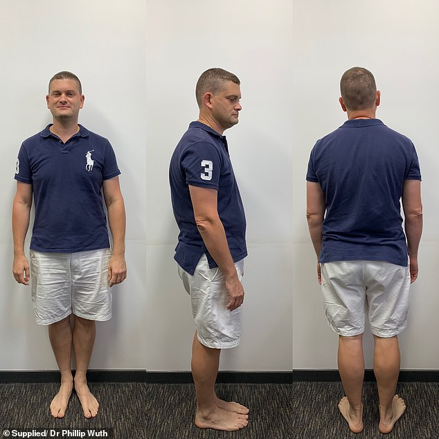 BEFORE:GP Dr Phillip Wuth , from Brisbane, was carrying excessive levels of body fat six weeks ago when he tipped the scales at 101.1kg (pictured)