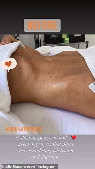 Tricks of the trade: Elle Macpherson, 56, let fans in on one of her beauty secrets on Wednesday as she documented an 'immediate liposculpture' prodcedure she was having on Instagram