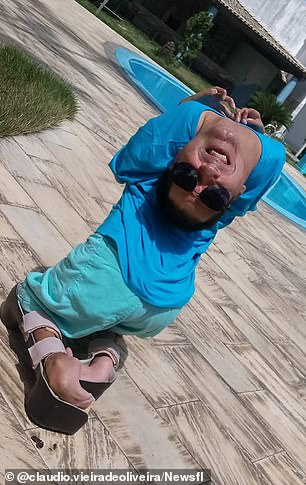 Despite having his head turned upside down, 'Claudinho' has no problems seeing, breathing, eating or drinking