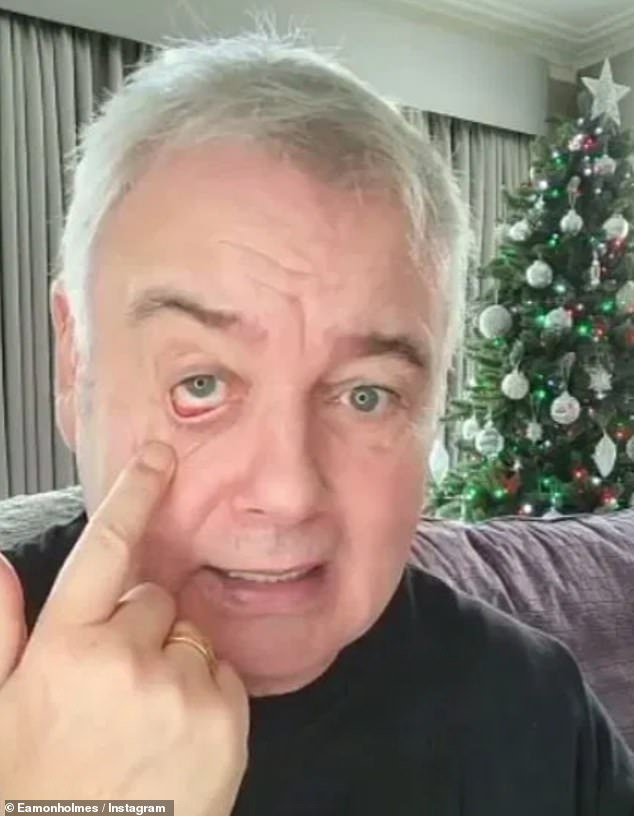 Health problems: In December, Eamonn chatted about a stye on his eye while thanking fans for their support and saying he and Ruth were going to 'get on with life' after being axed from This Morning