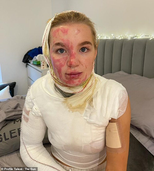 Injuries:Abbie, who also suffered third-degree burns on her body, posed for photos to highlight the burns which cover much of the right side of her face