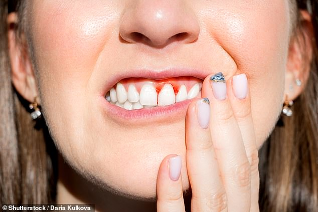 Periodontitis is an infection of the gums that often leads to bleeding and can result in tooth or bone loss. Sufferers are up to 2.3 times more likely to have high blood pressure (stock)