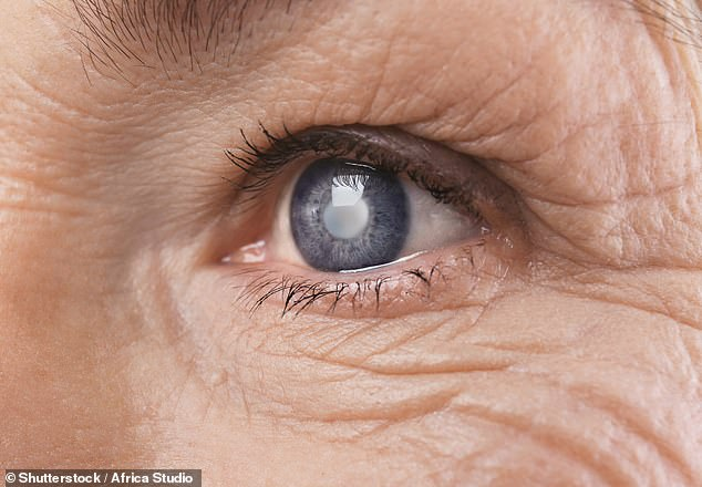 Cataracts occur when the lens - a small transparent disc inside the eye that helps focus light - becomes cloudy