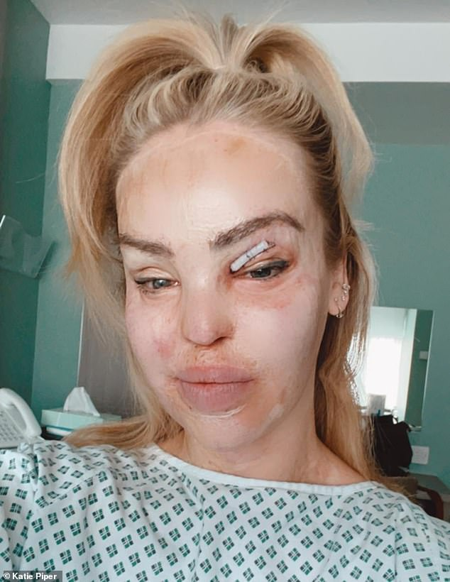 On the mend: Katie Piper, 37, is 'resting and recovering' in hospital following a successful operation for a skin graft over her right eye