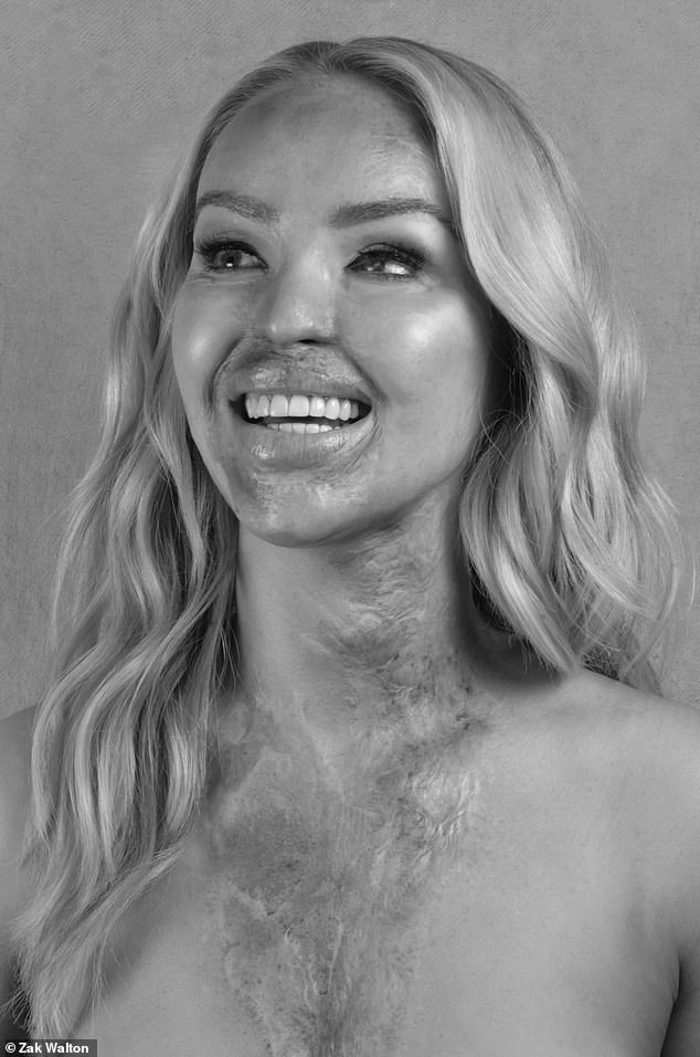 Gorgeous: Following the news about her operation, Katie also posed for a trio of stunning black and white snaps showcasing the scarring caused by the 2008 acid attack