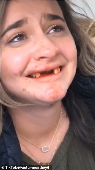 Consequences: She is next seen sitting in the passenger seat of a car, opening up her mouth to reveal her missing teeth while blood pours from her gums