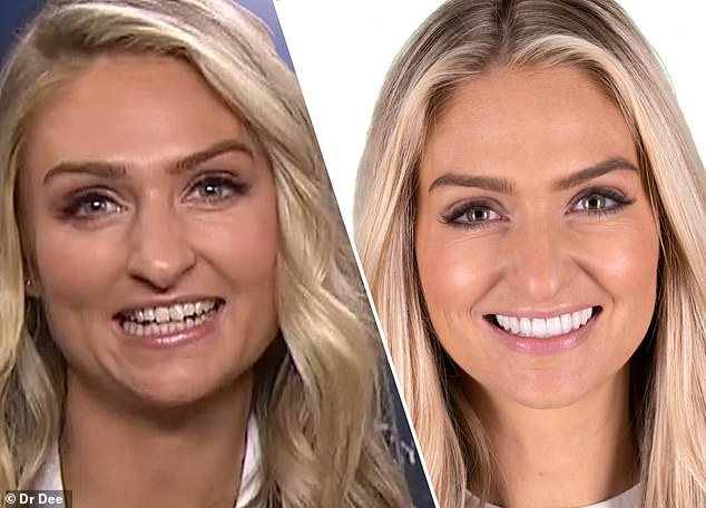 Hollywood smile: Married At First Sight bride Joanne Todd, 39, recently underwent a $48,000 teeth transformation. The reality star is pictured before (L) and after (R) the procedure