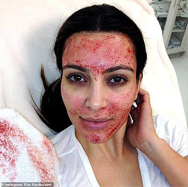 2013: The comedian, 37, who has been open about her own cosmetic procedures,claimed the Kardashians use doctors who perform vampire facials as a 'smokescreen' for their plastic surgeries (Kim pictured in 2013)