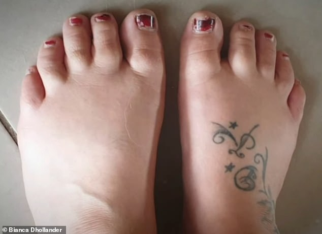 Ms Dhollander has since been suffering from severe exhaustion and swollen limbs (her feet pictured) which make it painful to move and wear restrictive clothing