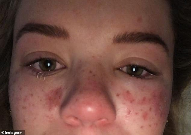 'Please, please don't try and DIY or at-home beauty procedures, I ended up in hospital with temporary loss of vision in my eye due to swelling and was very sick from the infection, not to mention my face was somewhat unrecognisable,' she said