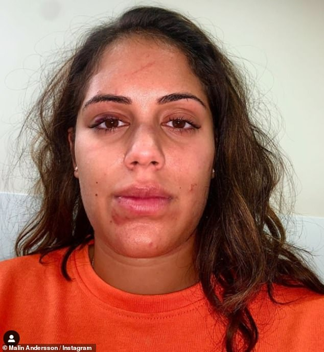 Powerful:Malin recently shared a throwback snap of herself with a bruised and cut face as she penned a powerful domestic violence post