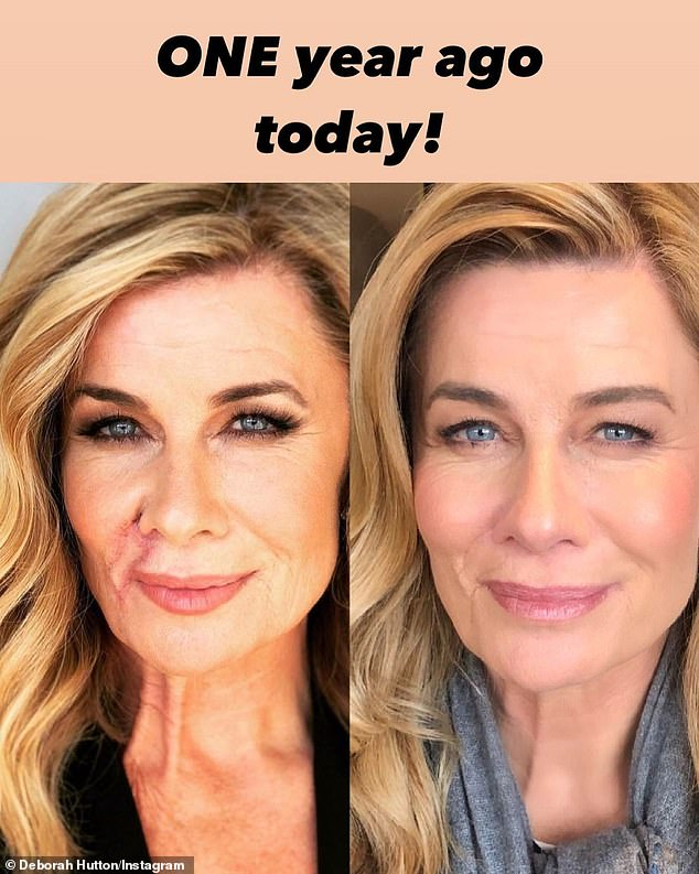 What a difference! TV star Deborah Hutton, 59, hasshared an incredible side-by-side photo to Instagram this week on the one-year anniversary of havingskin cancer removed from her face
