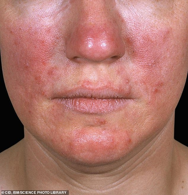 Acne rosacea on the face of a 28 year old woman. This condition is a reddening of the skin of unknown cause, sometimes accompanied by pustules (pus-containing blisters) that resemble acne. One possible cause is overuse of corticosteroid creams
