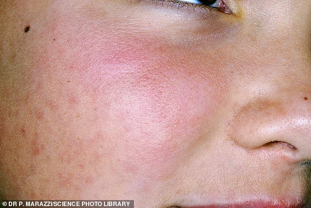 Close-up of urticaria on the face of an 11-year-old female patient. Urticaria, also known as nettle rash or hives, is a skin condition in which a rash of itchy wheals or lumps develops on the skin, usually on the trunk or limbs