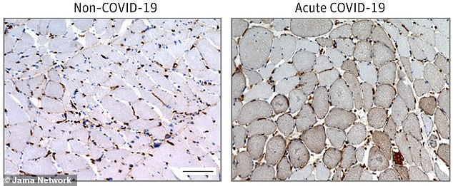 In a new inflammation, more than 60% of the COVID-19 patients had evidence of skeletal muscle tissue inflammation (left)