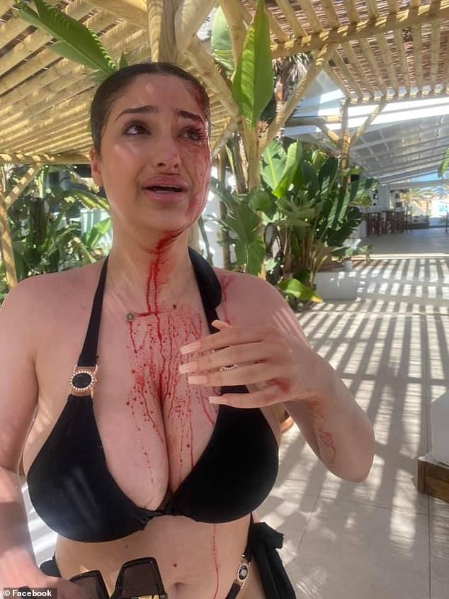 Rojeen was hit in the head by a champagne bottle after a row over a sunbed erupted in Marbella