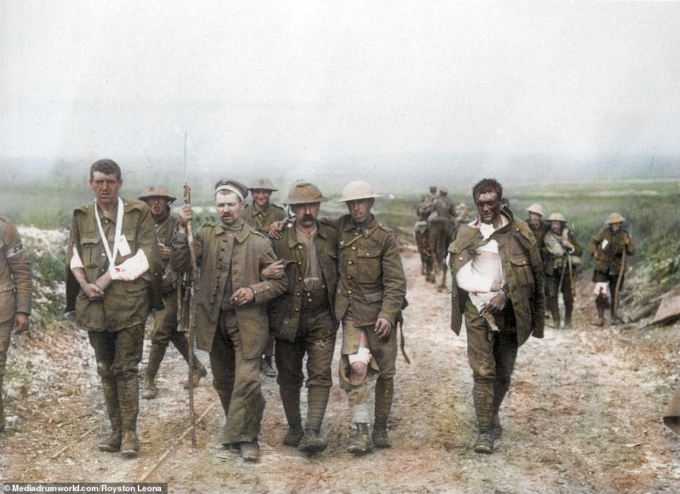 A German prisoner is assisted by wounded Britishsolders as they made their way to a dressing station after they fought on Bazentin Ridge on July 19, 1916. The Battle of Bazentin Ridge, fought from July 1 to November 18, was a British victory led byGeneral Henry Rawlinson which was part of wider efforts to force Germans out of defensive positions in an area known as High Wood. The Fourth Army suffered 9,194 casualties, while the Germans suffered 2,300, while another 1,400 men were taken prisoner