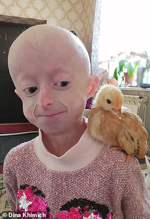 Progeria is a genetic disorder that causes children to age rapidly. Iryna (pictured) died at 10 years old, but doctors said she had the body of an 80-year-old