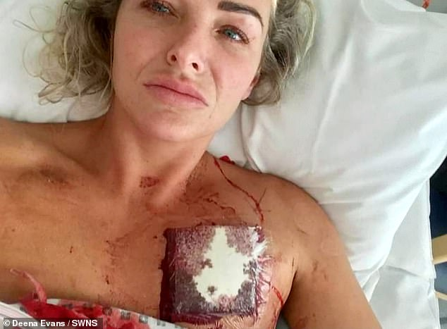 Deena Evans after the stabbing incident (pictured).Smith was jailed for nine years after admitting two counts of wounding with intent against the West Midlands Ambulance Service workers