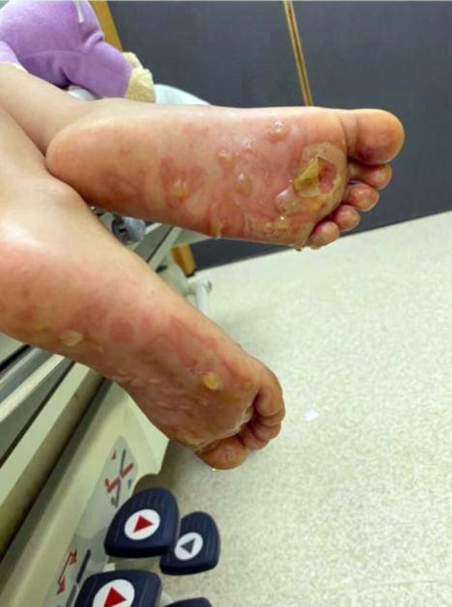 Little Sadie had to be rushed to hospital after stepping barefoot on the patch of hot sand while playing on the beach at Thorpe Bay, Essex. Pictured: She suffered burns to her feet during the incident