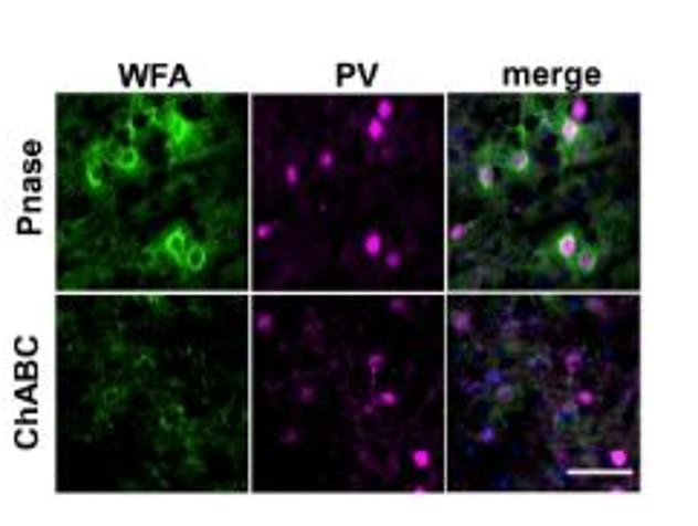 The study treated aging mice with a virus capable of reconstructing the amount of 6-sulfate chondroitin sulfates to the PNNs and found that this completely restored memory in the older mice.  The left image shows Wheat Germ Agglutinin (WGA), which binds to cell membrane glycoproteins, the middle image is the neurons found in the perineuronal NETs and the last image is the connections after being manipulated