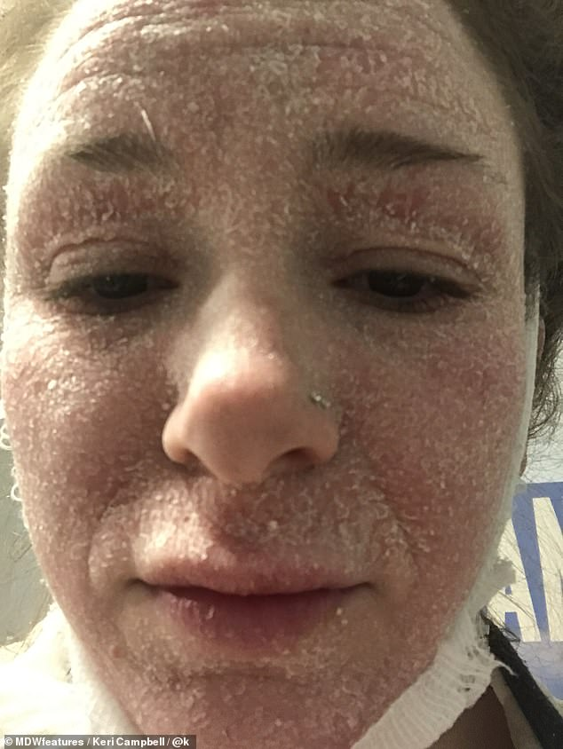 Keri's skin was in constant flare ups and she felt her eczema was becoming worse and worse as she grew older