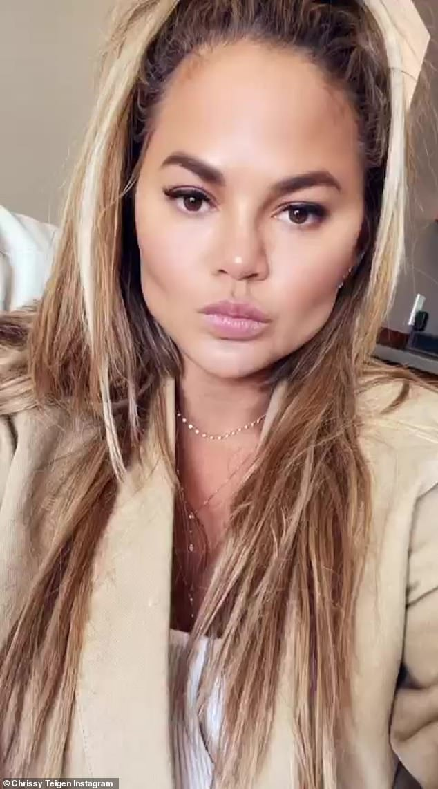 Bold and beautiful: Chrissy Teigen admitted she had fat removed from her face in a candid chat about cosmetic surgery on her Instagram stories
