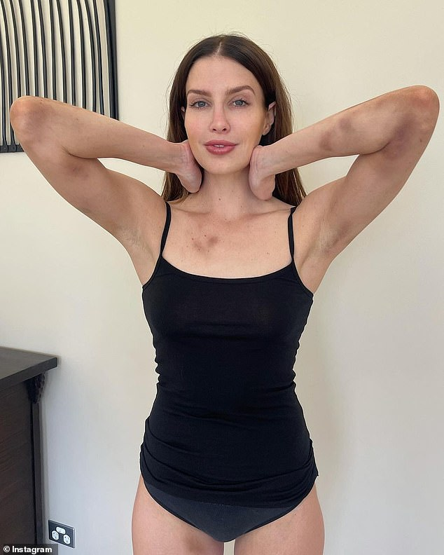 Injuries: The 32-year-old had dozens of bruises on her bruised arms and legs in a series of conflicting images shared with her 400,000 Instagram followers on Wednesday