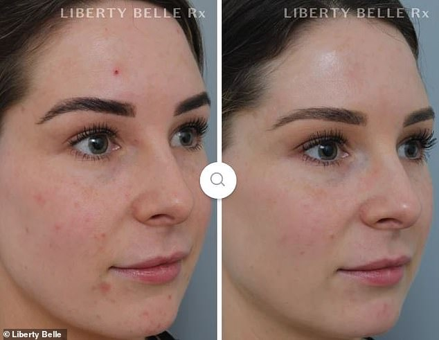 In a last ditch attempt to clear her skin, Laura (pictured before and after) tried the $70 Braveheart cleanser and $158 Bright Star serum - and saw almost instant results