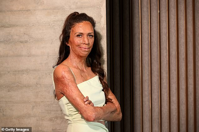 You're hired!Author and athlete Turia Pitt (pictured) will join comedy radio duo Will and Woody as the first three celebrities announced to star on the program