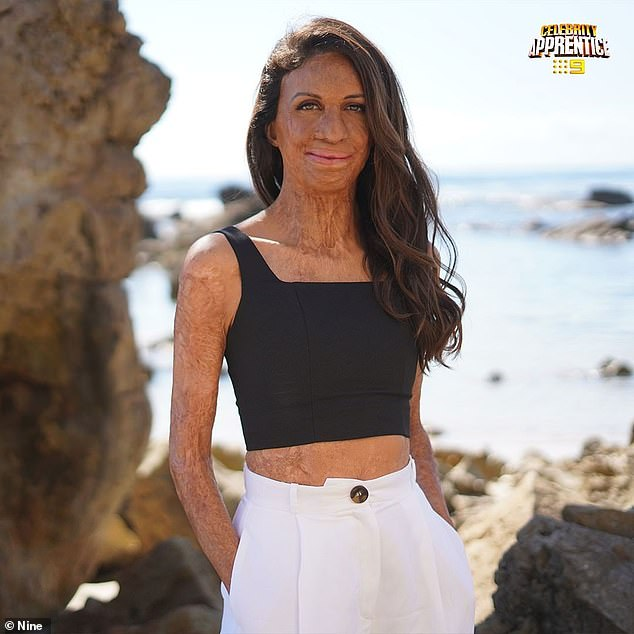 'Lord Sugar will see you in 2022,' read the post, going on to tag the KIIS FM stars and motivational speaker. Pictured, Turia Pitt