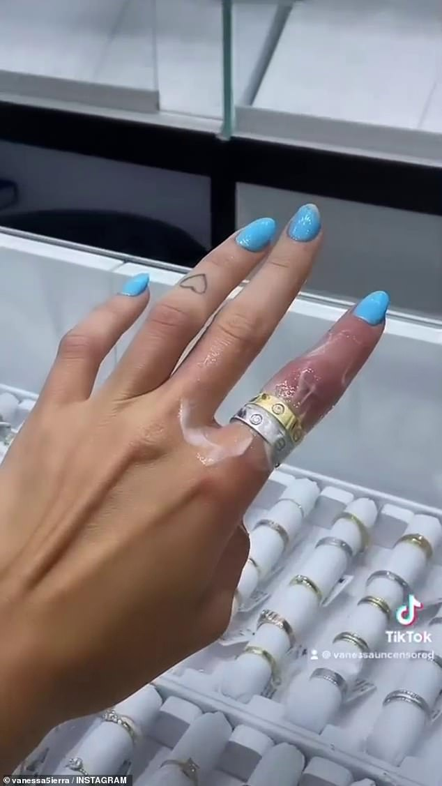 , Love Island: Vanessa Sierra's finger turns purple; has Cartier rings cut off, The Today News USA