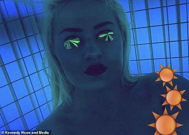 She turned to sunbeds after being unable to manage her sore and itchy skin through eczema creams