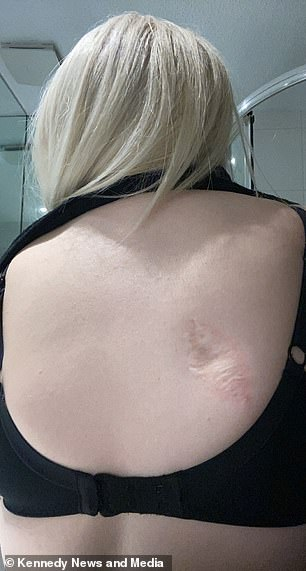 Ms Bolton now has a scar on her back from where the mole was removed