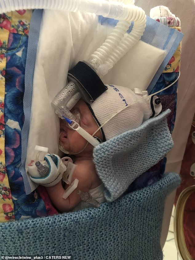 Baby Otis is receiving oxygen at 8 weeks of age.  Kelly was told that Chester's heart rate was decreasing and that he would be less likely to survive the caesarean.