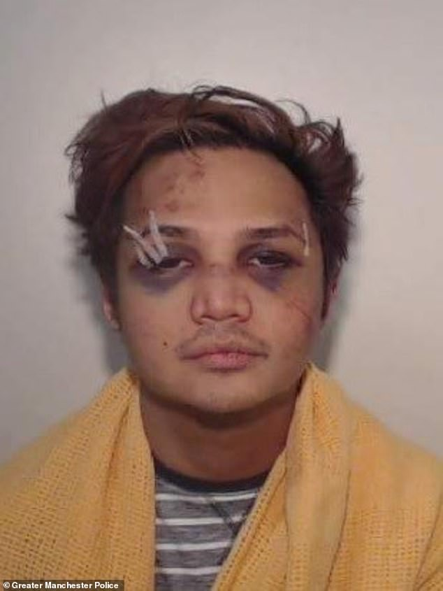 Sinaga's investigation began when one of his victims regained consciousness on the bathroom floor and fought with the rapist before reporting the incident to the police.  Rapist is pictured after being beaten up by one of his victims