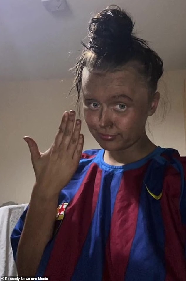 Children's Hospital support worker (pictured the next day after tanning), who admitted she looked like 'Casper the Friendly Ghost' without a tan, dug up an old bottle of tan